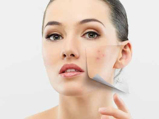 Воспаления кожи лица