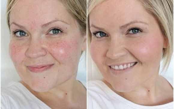 пилинг кожи лица
