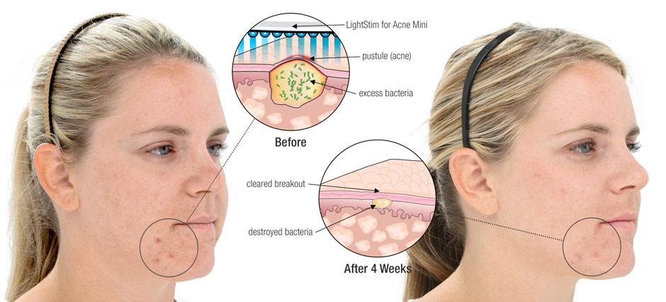 Высыпания на коже лица к какому врачу идти