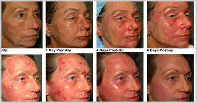 омоложение кожи лазером