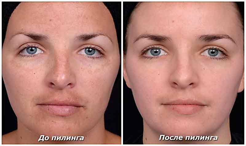 Микродермaбразия кожи лица