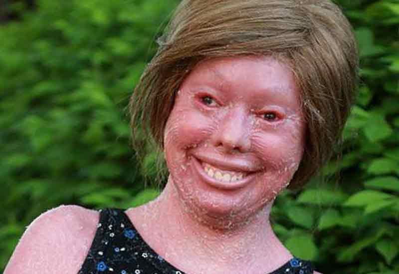 Ихтиоз кожи фото