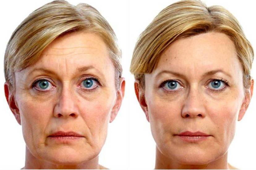 подтяжка кожи лица мезонитями