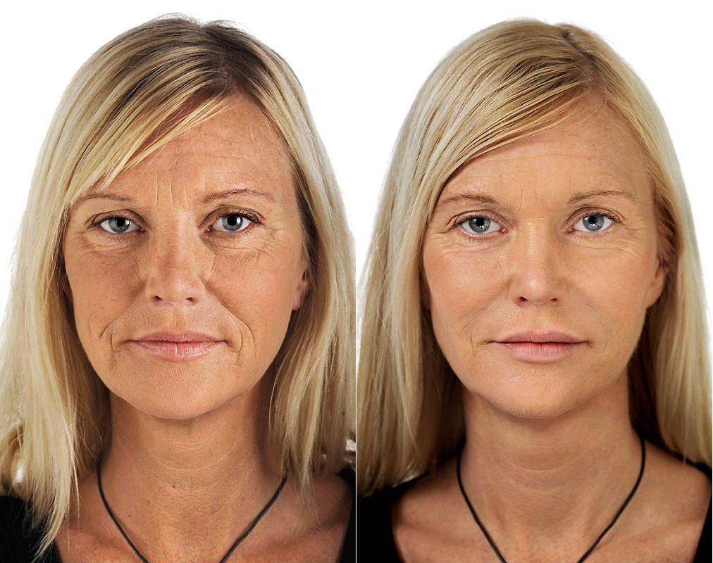 Биоармирование кожи мезoнитями