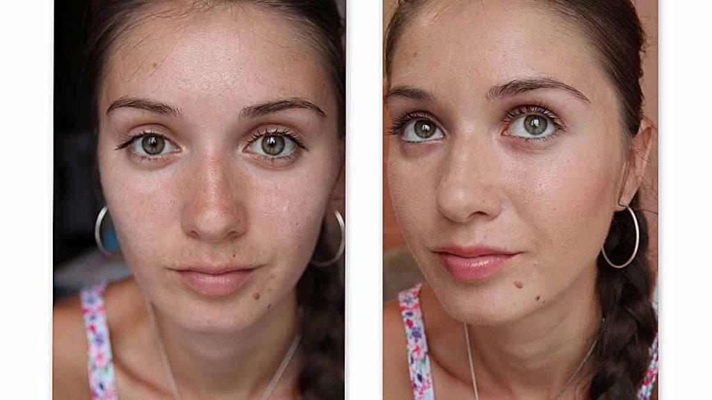 глубокая чистка кожи лица