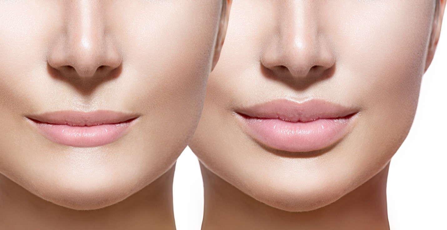 увеличении губ отзывы
