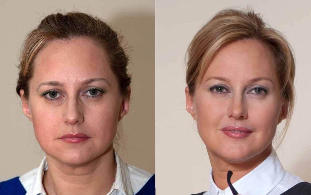 Фотоомоложение кожи лица