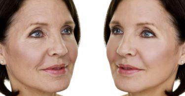 эффект фотоомоложения кожи лица