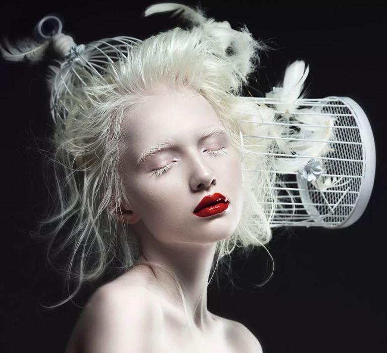 девушка альбинос модель