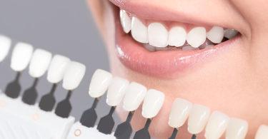 процедура отбеливания эмали зуба