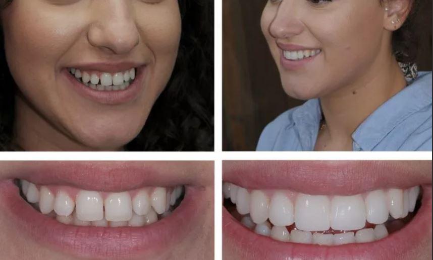 Виниры на зубы зубоврачебный кабинет