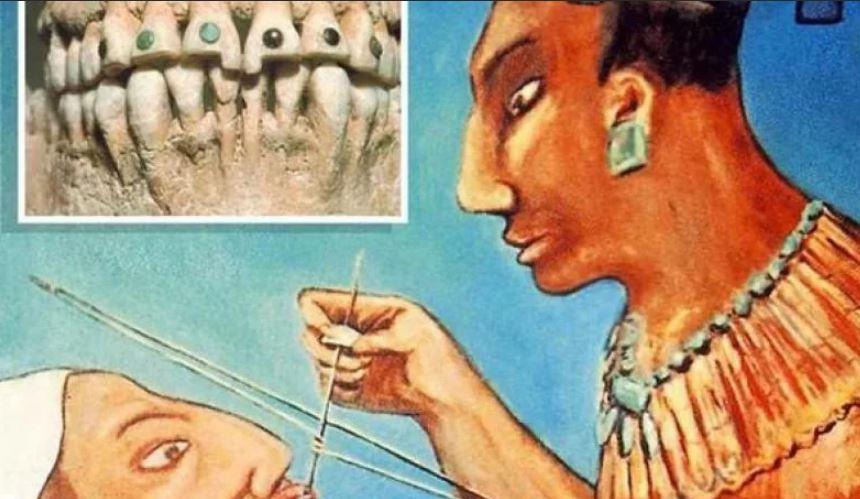 Украшение зубов в Древнем Египте зубоврачебный кабинет