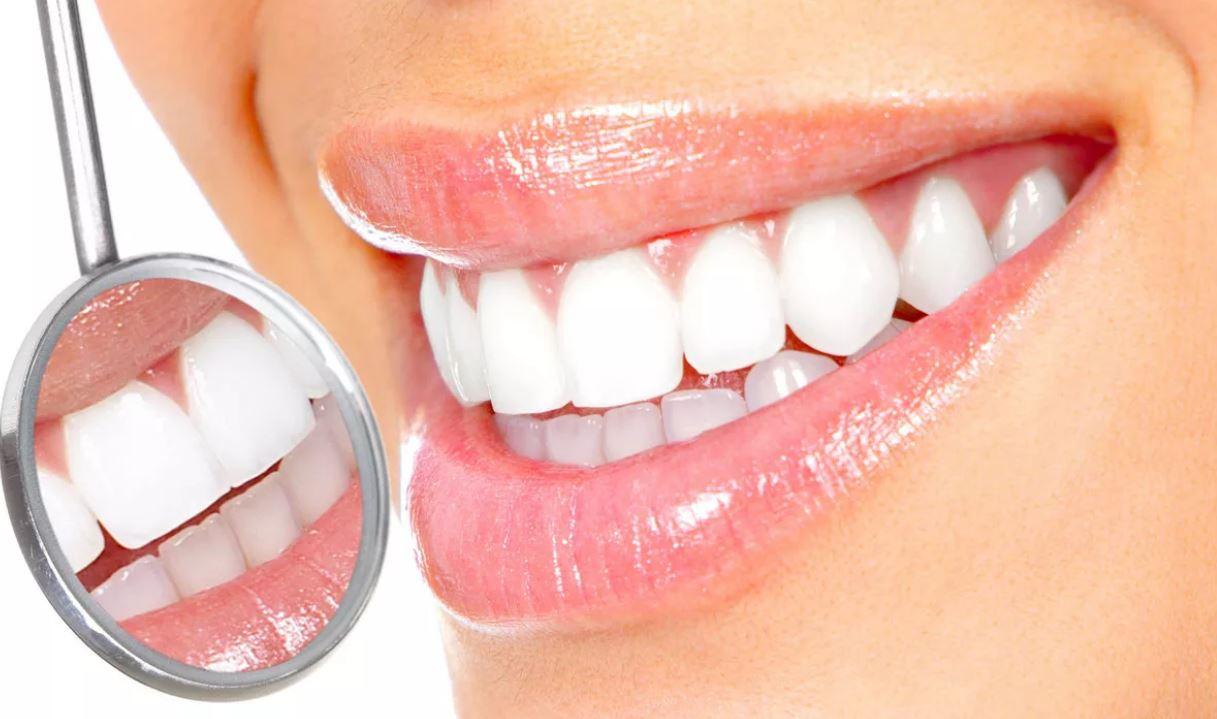 Виниры зубоврачебный кабинет